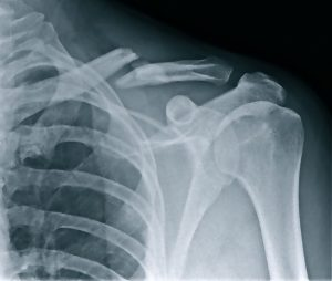 2012-04-16 collar-bone-xray medium